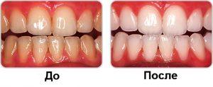 Фото до и после: отбеливание зубов Opalescence в Перми по низким ценам. Самое лучшее отбеливание зубов в стоматологической клинике София-Дента. Эффективно в домашних условиях. Чистка зубов, удаление зубного налета, лечение зубов 24 часа круглосуточно.
