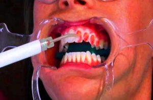 Фото профессионального отбеливание зубов Opalescence в Перми по низким ценам. Самое лучшее отбеливание зубов в стоматологической клинике София-Дента. Эффективно в домашних условиях. Чистка зубов, удаление зубного налета, лечение зубов 24 часа круглосуточно.