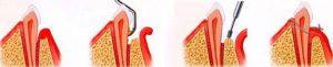 Лечение пародонтоза. Воспаление, кровоточивость десен, удаление зубного камня, налета на зубах. Врач назначит гель метрогил дента, троксевазин. Стоматологический кабинет София-Дента в центре Перми. Под наркозом, по полису без боли.