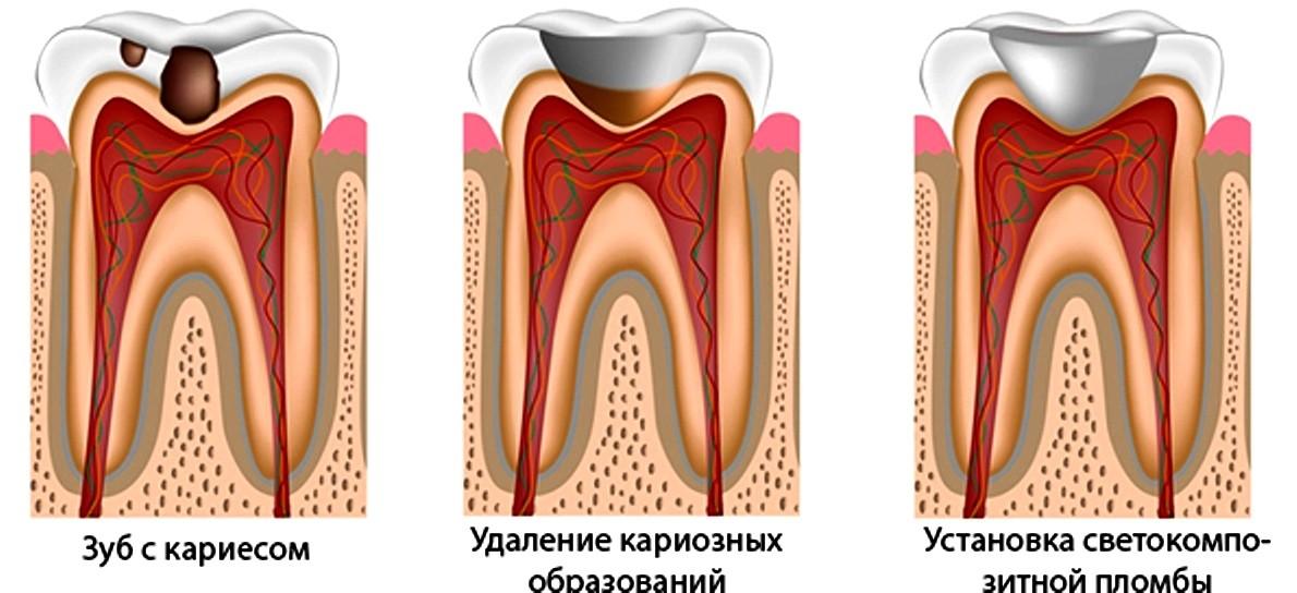 Как вылечить зуб в домашних условиях без дырки 290