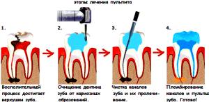 Лечение пульпита (воспаление нерва, сильная зубная боль) Быстрое лечение острой боли зуба ночью. Круглосуточный стоматолог из София-Дента ведет прием недорого, быстро, без боли sofiya-denta.ru