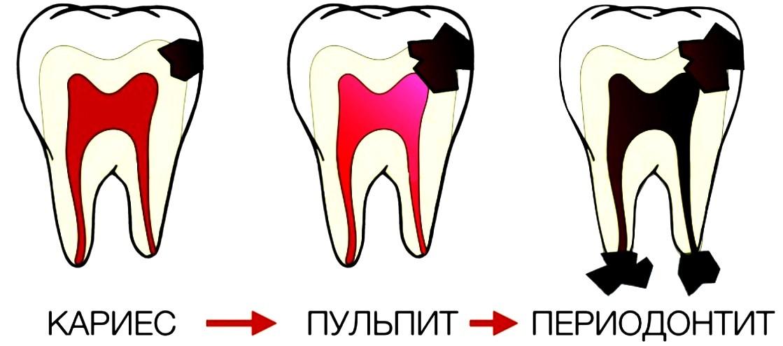 Болит зуб но кариеса нет