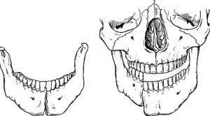 Перелом нижней челюсти. фото