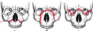 перелом верхней челюсти. фото