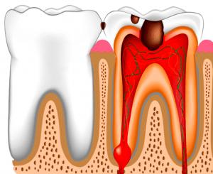 Фото: пульпит: воспаление нерва и сильная зубная боль. Быстрое лечение острой боли зуба ночью. Круглосуточная стоматологическая клиника София дента ведет прием после удаления, пломбирования, если флюс, опухла десна, щека. Недорого, быстро, в комфортных условиях sofiya-denta.ru