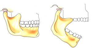 вывих нижней челюсти вправить в круглосуточной стоматологии София Дента в Перми рядом с травмпунктом