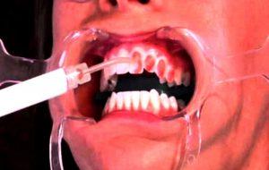 Фото: профессиональное отбеливание зубов Opalescence в Перми по низким ценам. Самое лучшее отбеливание зубов в стоматологической клинике София-Дента. Эффективно в домашних условиях. Чистка зубов, удаление зубного налета, лечение зубов 24 часа круглосуточно.