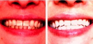Фото до и после: отбеливание зубов Zoom в Перми по низким ценам. Эффективно в домашних условиях. Чистка зубов, удаление зубного налета, лечение зубов 24 часа круглосуточно. Самое лучшее профессиональное отбеливание зубов в стоматологической клинике София-Дента в Перми по низким ценам в Мотовилихинском районе и центре города на Куйбышева 125.