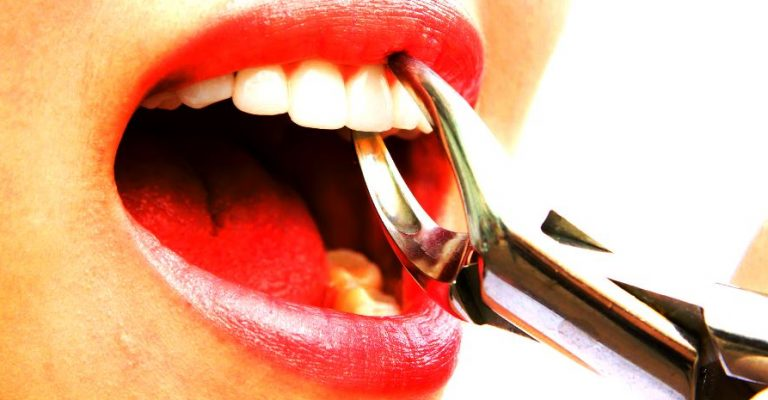 После удаления зуба что делать в домашних условиях 48