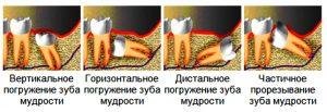 фото: неправильное прорезывание зуба мудрости в челюсти. Такой зуб мудрости подлежит удалению. Стоматология София-Дента в Мотовилихинском районе и центре города. Много отзывов пациентов. Работаем ночью, в выходные. Лечение и удаление зубов мудрости по полису, в кредит.
