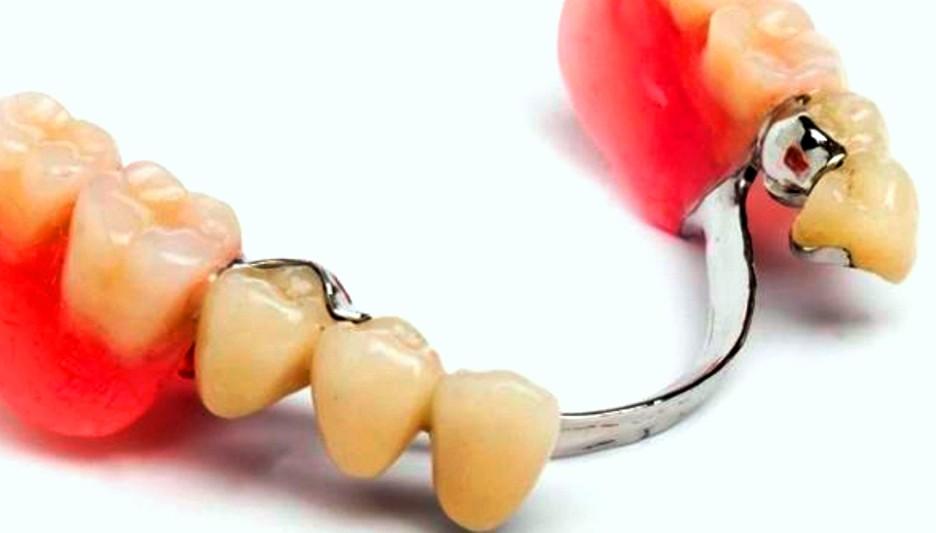 Зубные протезы в туле цены
