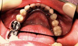 Фото: бюгельный протез на замках (аттачментах) на нижнюю челюсть