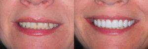 Фото до и после: установка люминиров в Перми: самый лучший, эффективный способ реставрировать передние зубы без обточки, без боли со сроком службы 20 лет. София-Дента: хорошие цены, отзывы пациентов, смотрите фото до и после. Легкий уход в домашних условиях. Чистка зубов, удаление зубного налета, лечение зубов 24 часа круглосуточно. http://sofiya-denta.ru/