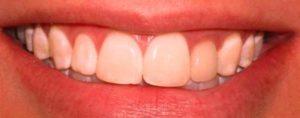 Фото установки композитных виниров до и после1. Недорогой способ исправить форму передних зубов винирами из композита, хорошие отзывы пациентов. Легкий уход за винирами в домашних условиях своими руками. Смотрите фото до и после.