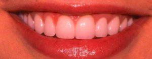 Фото установки композитныз виниров до и после2. Недорогой способ исправить форму передних зубов винирами из композита, хорошие отзывы пациентов. Легкий уход за винирами в домашних условиях своими руками. Смотрите фото до и после.