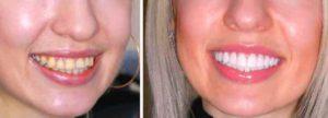 Фото установки керамических виниров до и после. Самое лучшее и безопасное исправление цвета и формы передних зубов: керамические виниры, хорошие отзывы пациентов. Легкий уход за винирами в домашних условиях своими руками. Смотрите фото до и после.