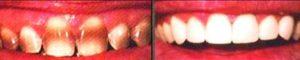 Фото установки керамических виниров до и после 2. Самое лучшее и безопасное исправление цвета и формы передних зубов: установка виниров в Перми: керамические, композитные, ультраниры, люминиры. Лучший способ получить белоснежную голливудскую улыбку в стоматологии София-Дента. Смотрите фото до и после 2.