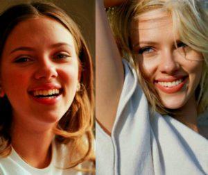 3 Фото установки ультраниров у звезд до и после. Кристина Орбакайте. Недорогой способ исправить форму передних зубов ультранирами, хорошие отзывы пациентов. Легкий уход в домашних условиях своими руками.