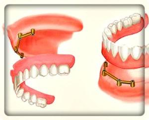 Полный съемный протез на имплантах с балочным креплением. установка в Перми в стоматологии София-Дента