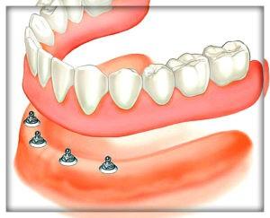 Полный съемный протез на имплантах с внутриканальным креплением. Установка в Перми в стоматологии София-Дента