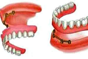 Съемные зубные протезы на имплантах в Перми: фото