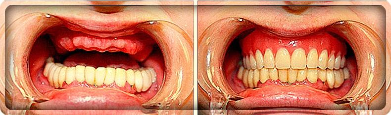 Съемный нейлоновый протез на верхнюю челюсть: фото