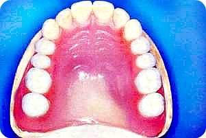 Фото полного съемного протеза для верхней челюсти в Перми