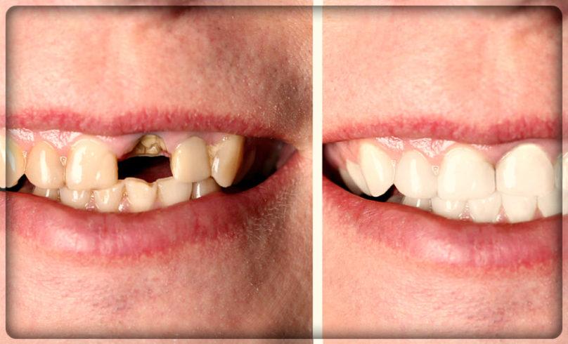 Вставить металлокерамику: фото до и после 2.