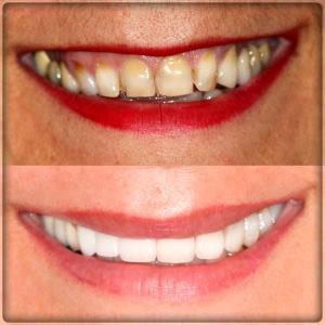 Установка коронок на зубы в Перми: фото до и после