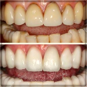 Установка металлокерамических коронок на зубы в Перми: фото до и после