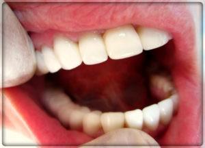Установка фарфоровой коронки на зубы в Перми