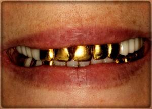 Установка металлической коронки из золота на зубы в Пер им