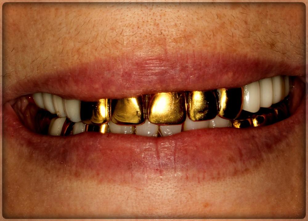 Коронка на зуб из золота