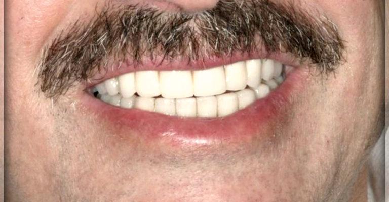 Что такое микропротезирование передних зубов 4