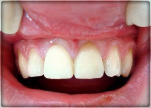 Установка пластмассовой коронки на зубы в Перим