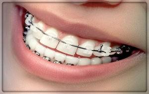 Установка классических брекетов на передние зубы в Перми