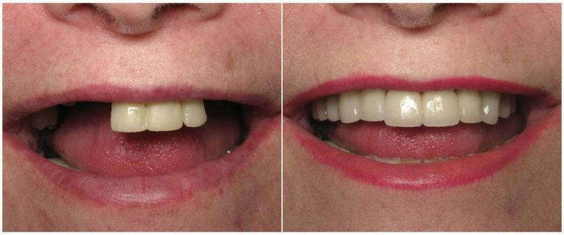 Вставить зубы в Перми мостовидным протезом в стоматологии София-Дента