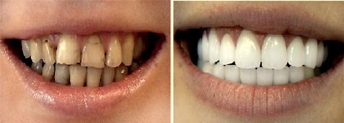 Фарфоровая коронка на зуб: фото до и после. вставить зубы в Перми недорого