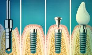 Фото: этапы имплантации зубов в Перми в стоматологии София-Дента