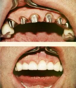 Фото: имплантация зубов до и после в Перми в стоматологии София-дента