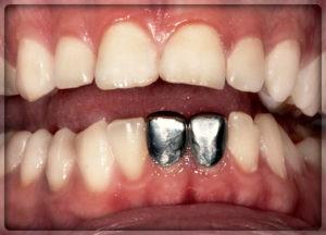 Металлические зубы в Перми. Фото, цены в Перми в стоматологии София-Дента