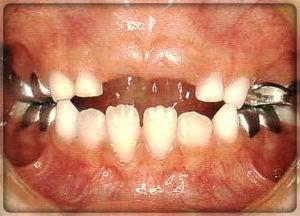 Металлические коронки на зубы. Вставить зубы в Перми в стоматологии София-Дента