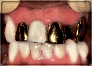 Коронка на зуб из золота. вставить золотые зубы в Перми в стоматологии София-Дента: фото, цены