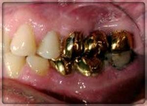 Золотые коронки на зубы в Перми. вставить золотые зубы в Перми в стоматологии София-дента: фото, цены
