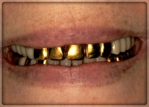 Коронки под золото в Перми. Вставить зубы в Перми в стоматологии София-Дента: фото, цены