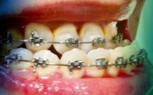 Фото: металлические недорогие брекеты Мини мастер в Перми в стоматологии Софья Дента