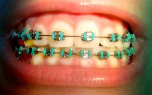Фото: цветные металлические брекеты мини-мастер в Перми по низким ценам в стоматологии София-Дента
