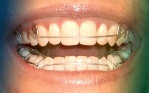 Фото: съемный пластиночный ретейнер в стоматологии София Дента