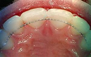 Фото: несъемный проволочный ретейнер в стоматологии София Дента