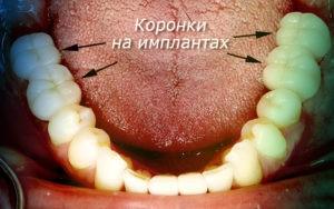 Фото после имплантации: коронки на имплантах. Вставить зубы в Перми по низким ценам